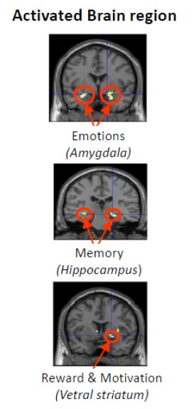 fMRI scans for neuromarketing