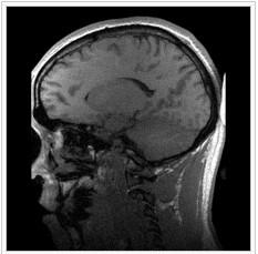 neuromarketing examines the subconscious