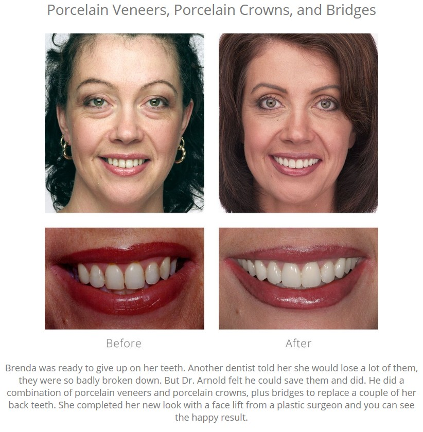 """Before-and-after photographs of a woman who had a smile makeover, with a caption: """"Brenda was ready to give up on her teeth. Another dentist told her she would lose a lot of them, they were so badly broken down. But Dr. Arnold felt he could save them and did. He did a combination of porcelain veneers and porcelain crowns, plus bridges to replace a couple of her back teeth. She completed her new look with a face lift from a plastic surgeon and you can see the happy result."""""""